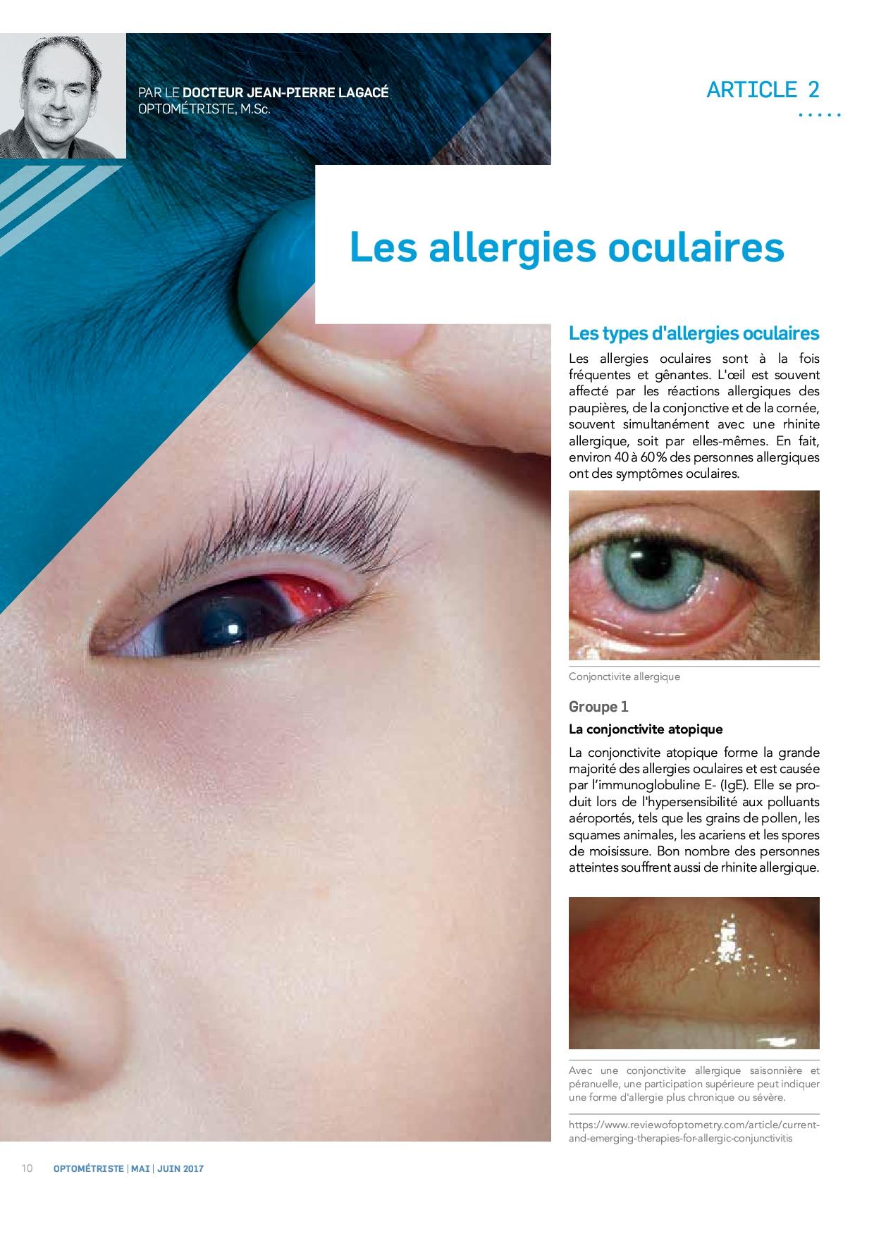 Les allergies oculaires